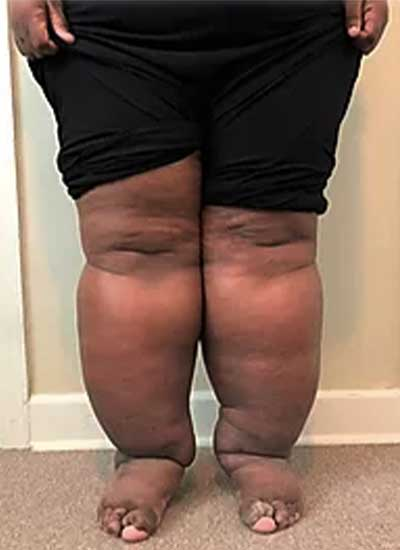 Both legs with lymphedema