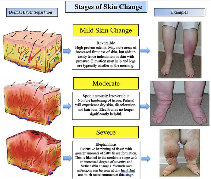 Stages of Skin Change